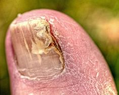 Cures for Thick Yellow Toenails thumbnail