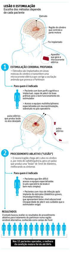 Novo tipo de cirurgia para parkinson passa em teste - 09/04/2014 - Equilíbrio e Saúde - Folha de S.Paulo