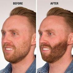 Instant Beard Filler with Infinity Hair Fibers for Men - Hair Fiber Starter Kit