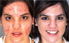 WelcomeCure provides quality Homeopathic Treatment for Acne. Visit us for gentle, side-effect free treatment.
