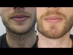 HLC www.hairtransplantcenter-turkey.com Turkey 1000 Grafts Beard Transplant - Beard to Beard