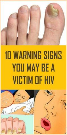 Warning Signs You May Be A Victim Of HIV Physical illnesses no longer come secretly. Most physical conditions include specific symptoms that report Signs Of Hiv, Signs And Symptoms, Hiv Symptoms, Hiv Positive, Skin Rash, Warning Signs, You May, Wellness Tips, Groomsmen