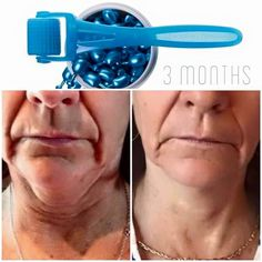 AMP MD isn't just for your face! Look at these results. After only 3 months  sarahmg.myrandf@gmail.com