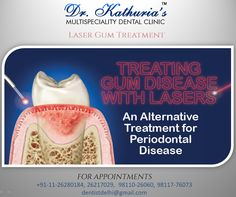 Laser Gum Treatment at Dr. Kathuria's Multispeciality Dental Clinic #dentaltreatment