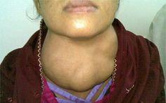 Iodine Deficiency Disorder