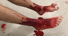 Lugar e hora errados: adolescente tem as pernas devoradas ao entrar no mar