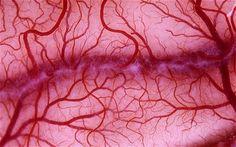 patterns - blood vessels