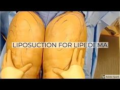 Liposuction for Lipedema: Dr Repta Plastic Surgery Youtube Comments, Weight Loss Blogs, Liposuction, Plastic Surgery, Lose Belly Fat, Health And Beauty, Gq, Girl Blog, Cars