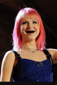 Hayley Williams with no teeth :')