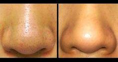Prirodni lijek: Trik koji garantovano pali: Riješite se mitesera s cijelog lica za deset minuta