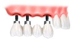 Dental implants are offered by Plantation FL Oral Surgeons to replace missing teeth. Find out more about dental implants. Best Dental Implants, Dental Implant Surgery, Teeth Implants, Dental Surgery, Implant Dentistry, Dental Bridge Cost, Affordable Dental, Tooth Replacement, Emergency Dentist