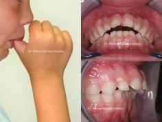 Motricidad orofacial Nyelvlökéses nyelés - a szabálytalan fogsor így alakul ki ujjszopás következtében.