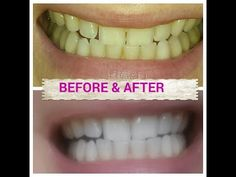 Teeth WHITENING naturally with TUMERIC ( a spice found in any supermarket) - YouTube