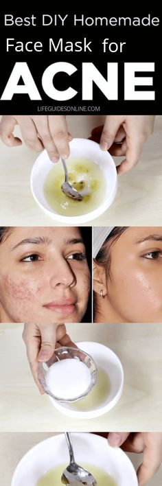 This Diy Homemade acne face mask scrub, is an excellent natural remedy for getting rid of acne. It's the perfect mask to clear acne and eliminate breakouts.