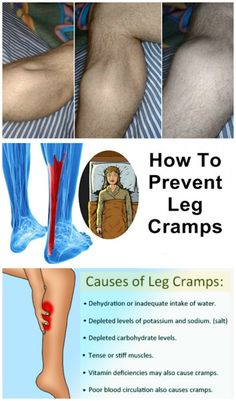 A muscle cramp is a strong, painful contraction or tightening of a muscle that comes on suddenly and lasts from a few seconds to several minutes. It often occurs in the legs. A muscle cramp is also called a charley horse. Natural Cures, Natural Health, Leg Cramps Causes, Leg Cramps At Night, Health And Wellness, Health Fitness, Health Tips, Health Options, Health Club