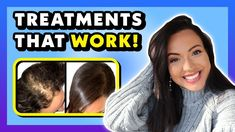 TREATMENTS THAT WORK FOR HAIR LOSS  (Hair Loss Treatments For Women Backed by Science) 🔬