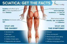 Chronic Sciatica, Sciatica Symptoms, Sciatica Pain Relief, Sciatica Exercises, Sciatic Pain, Face Exercises, Back Pain Symptoms, Causes Of Back Pain, Physical Therapy