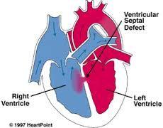 Murmurs in Babies Ventricular septal defect - increases pulmonary blood flow (CHF). Patch or not patch, depending on severityVentricular septal defect - increases pulmonary blood flow (CHF). Patch or not patch, depending on severity Bsn Nursing, Pediatric Nursing, Nursing Tips, Patent Ductus Arteriosus, Ventricular Septal Defect, Nurse Teaching, Nurse Aesthetic, Heart Murmur, Nurse Jackie