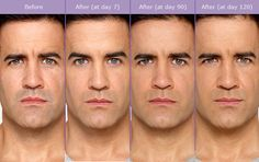 Getting rid of those scowl lines with BOTOX® #tucson