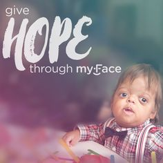 A new year means #newchances to help support the #craniofacial community! Start planning your ideas in launching your new fundraiser and give hope through myFace.  #CharityTuesday #NewYear #GiveHope