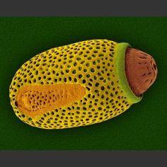 Microscopic Walkingstick Egg Case