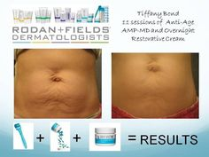Wow! Calling all Mamas! This is my business partner, who is a mother of four. She used the AMP MD roller only 11 times so far and look how amazing her skin looks. Whether it's stretch marks, scars, or wrinkles, Rodan+Fields AMP MD roller is a must have! Contact me today. JennsRF.myrandf.com.