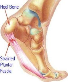 Learn more about Plantar Fasciitis and Heel Pain http://www.caringfootcare.com/heel-pain-treatment.html