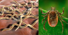 Lyme disease is becoming one of the fastest emerging infectious diseases in North America that is moving northward from endemic areas of the United States towards southeast Canada.