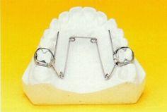 Quad Helix  Aparatología ortodoncica destinada a la expansión dentoalveolar posterosuperior uni o bilateral.