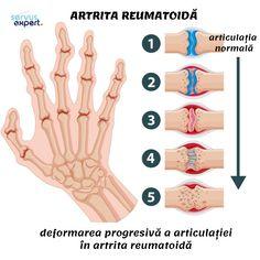 Rheumatoid Arthritis Hands, Inflammatory Arthritis, Sleep Medicine, Best Hospitals, Cardiology, Neurology, Autoimmune Disease, Pediatrics, Health Care