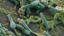 Video: Katso miten nopeasti bakteerit alkavat sietää antibiootteja.