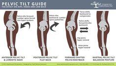 Fixing Posterior Pelvic Tilt - Hip Tilt Causes & Fixes Scoliosis Exercises, Posture Exercises, Hip Pain, Back Pain, K Tape, Posture Fix, Psoas Release, Chiropractic Treatment, Pelvic Tilt