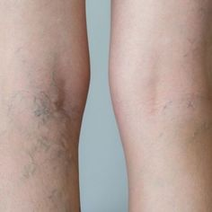 Natural Remedies for Varicose Veins - Everyday Remedy