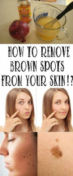 You'll certainly knock out your age spots. Age spots can occasionally be rough in texture. They are caused by prolonged sun exposure. They are sometimes called liver spots. Sun Spots On Skin, Black Spots On Face, Brown Spots On Hands, Spots On Legs, Dark Spots, Brown Skin, Dark Skin, Dark Brown, How To Get Rid