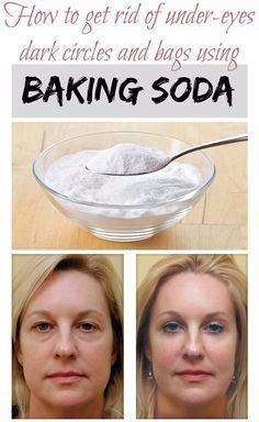 How to get rid of under-eyes dark circles and bags using baking soda | FOOD HEALTH AND FITNESS