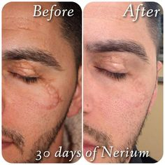 For more information about NeriumAD, or to place an order, go to www.kimberlytruitt.nerium.com or http://kimberlytruitt.theneriumlook.com