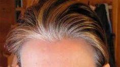 Cuando esto ocurre es normal que las personas comiencen a optar por el uso de tintes de cabello para poder darle color a las hebras de cabello que se muestran de un color blanco o grisáceo.