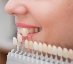 Veneers are a wonderful way to design and create the smile that you deserve!! Make year 2015 all about you! Call us today for your FREE consultation (510) 359-7478  http://www.topdentisthayward.com
