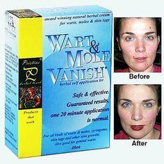Wart Mole VANISH Skin Tag Remover 20 minute application Natural Fomula