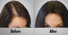 #Making Hair #Transplantation #Best for You