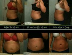 before and after pictures using the ultimate body applicator! Tone, tighten, and firm in as little as 45 min! Check it out: alliciaedmonson. What Is Cellulite, Lose Cellulite, Hydrogen Peroxide Skin, Fitness Before And After Pictures, It Works Body Wraps, Ultimate Body Applicator, Weight Loss Pictures, Beauty Hacks, Health And Wellness