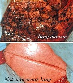 Lung Cancer Symptoms. I saw something like this when I was in 4th grade. I never smoked because of this picture!