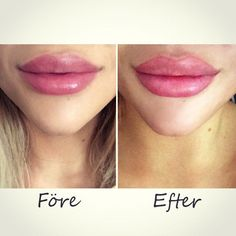 before after lips Beautiful Isabelle Strömberg lovely big lips before after lip injection Beautiful Isabelle Strömberg lovely big lips before after lip injection www. Botox Fillers, Dermal Fillers, Lip Fillers, Best Lip Gloss, Diy Lip Gloss, Mascara Tips, How To Apply Mascara, Applying Mascara, Big Lips