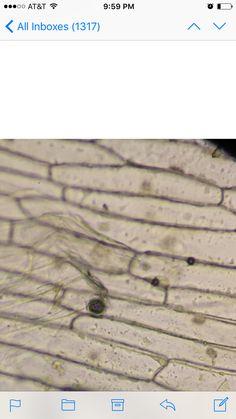 Células cebolla Observable el núcleo y la pared celular