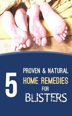 Soothe Blisters with these proven natural home remedies #homeremedies