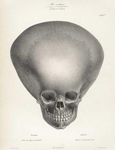 """Joseph Vimont and Engelman - """"Skull of a Hydrocephalus Child"""", from Traité de Phrénologie Humaine et Comparée, 1832"""