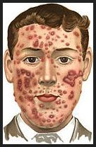 How to Get Rid of Acne Scars - Silk Skin