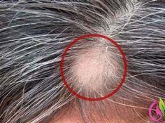 Bu Eşsiz Doğal Madde İle Beyaz Saçları ve Saç Dökülmesini 2 Adımda Yok Edin!