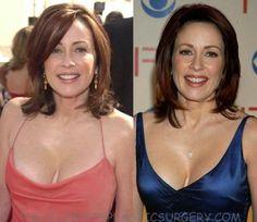 patricia heaton breast reduction plastic surgery