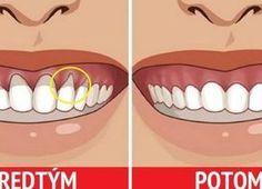 Mala som problém s odhalenými krčkami zubov, veľké bolesti a zubár mi poradil niečo z prírodnej lekárne. Moje ďasná sú konečne zdravé a s bolesťami mám pokoj!   Báječné Ženy